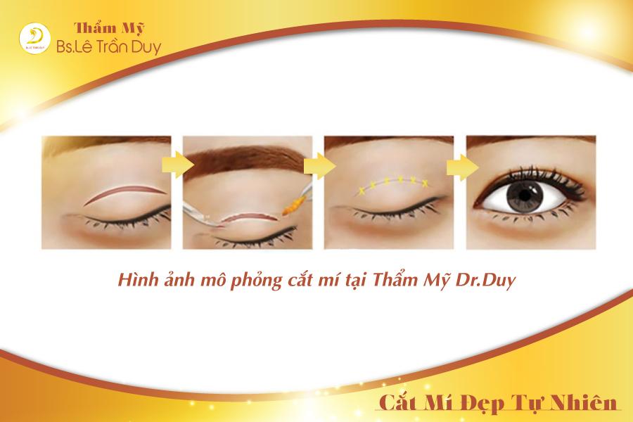Mô phỏng quá trình cắt mí mắt không đau không chảy máu
