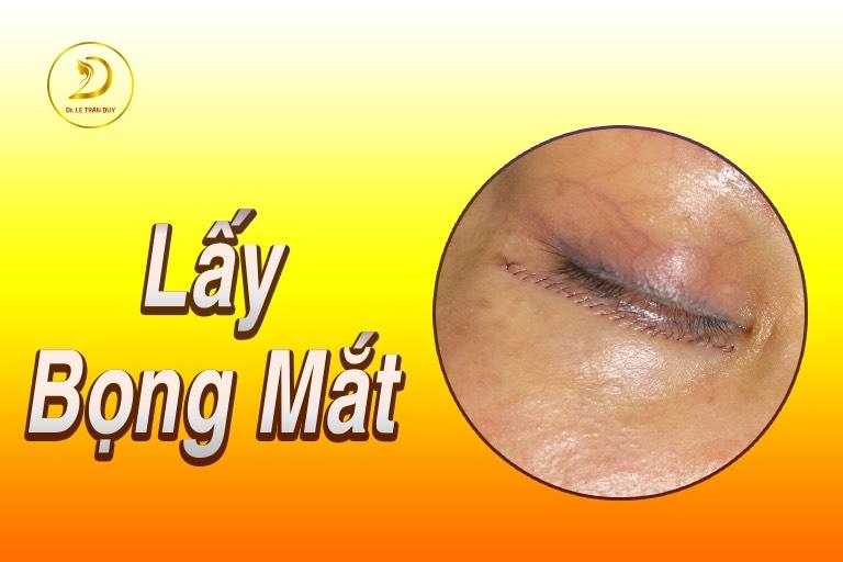 lay bong mat