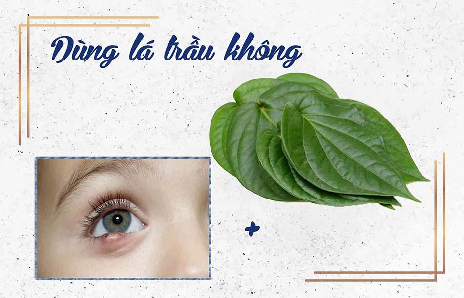 Cách chữa lẹo mắt bằng mẹo