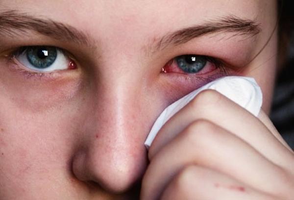 Mí mắt bị sưng sau khi ngủ dậy