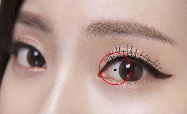 Tẩy nốt ruồi trong lòng trắng mắt
