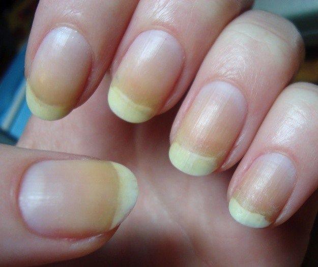 Tại sao móng tay có màu trắng đục