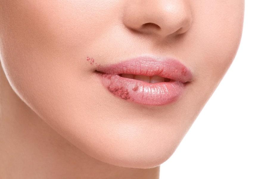 Phun môi bị mụn nước có để lại sẹo không