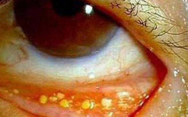 Nổi hạt trắng ở mí mắt dưới