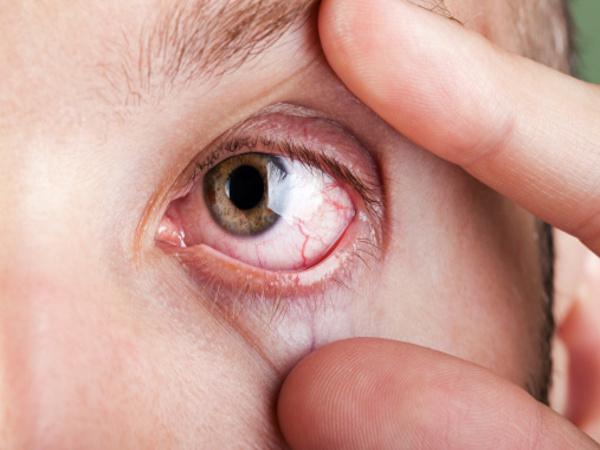 Lòng trắng mắt hiện rõ các mạch máu đỏ