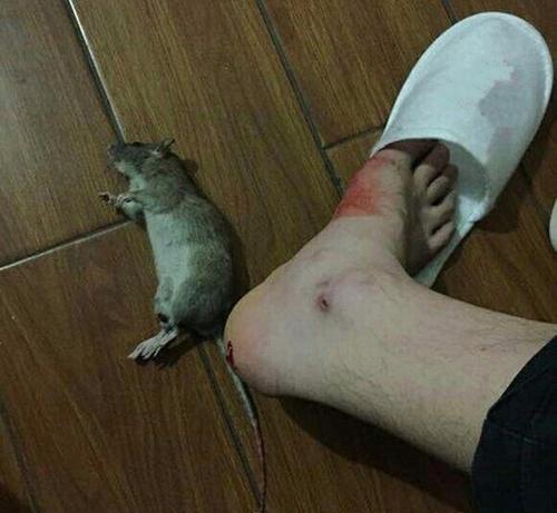 Bị chuột cắn chảy máu có sao không